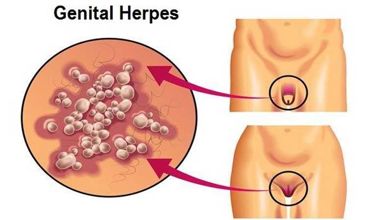 وقتی زگیل تناسلی و ویروس HPV در بدن فرد به وجود می آید و این می تواند یک عامل خطرناک و مهم شمرده شود