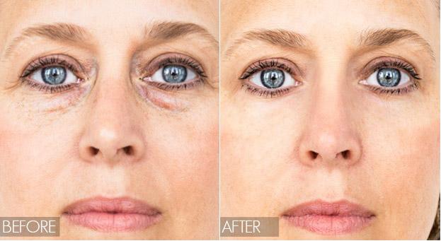هر چه پیرتر می شویم، خاصیت کشش و حجم پوست خود را از دست می دهیم
