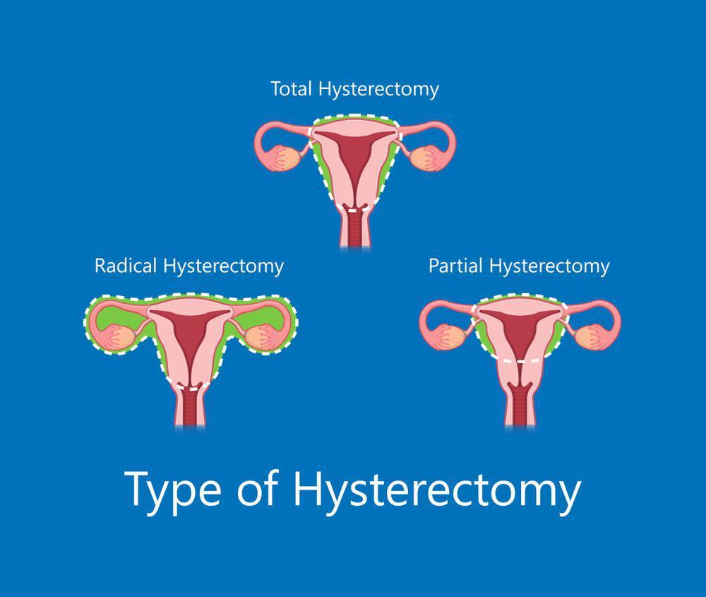 ترشحات بعد از عمل واژن