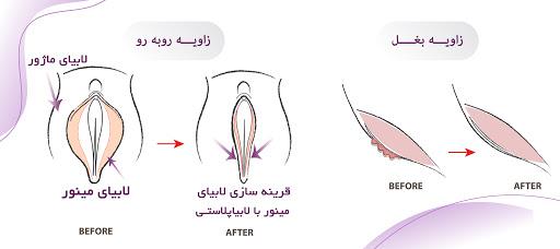 مهمترین عمل زیبایی واژن برای بانوان، لابیاپلاستی می باشد