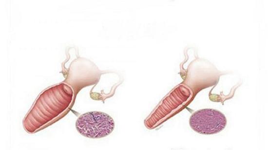 تنگ کردن واژن با جراحی و لیزر
