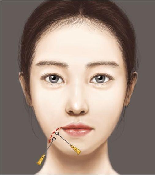 مزوتراپی و التهاب های صورت