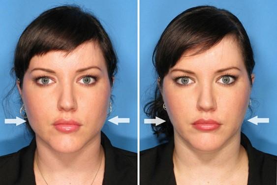 اگر شما پوست صورتتان را به وسیله انگشتان شصتتان از هر دو سمت به طرف گوش هایتان بکشید و چهره ی شما یک حالت زیبایی بگیرد