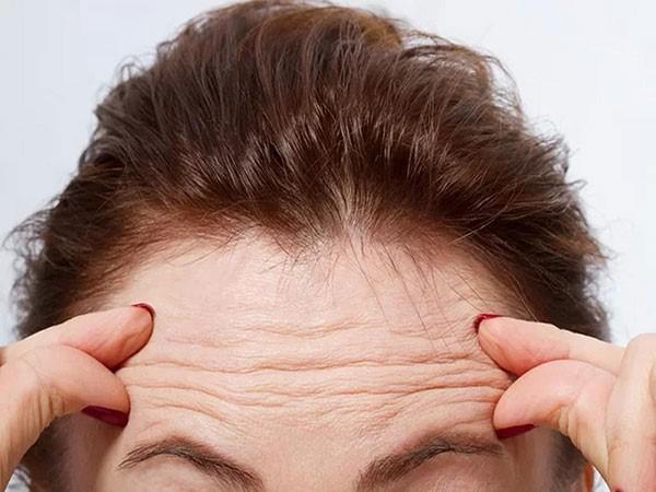 آیا تزریق بوتاکس محدودیت سنی دارد؟