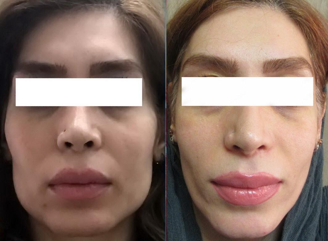 آیا می دانید که زاویه دار کردن صورت چیست و به چه دلیل انجام می شود؟