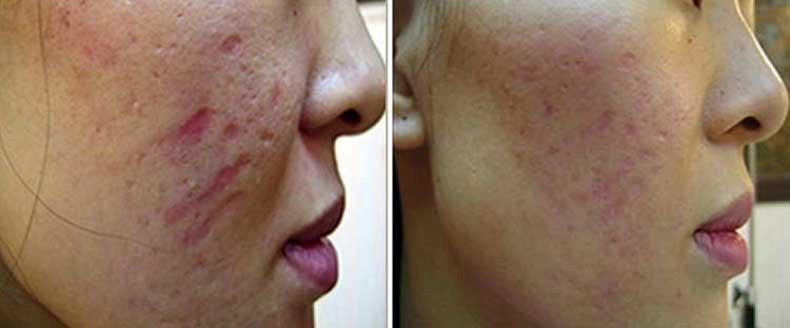 آیا در زمینه ی مهم ترین عارضه ها و بیماری های پوستی که با شیوه ی میکرونیدلینگ قابل رفع شدن و درمان می باشند، اطلاعاتی دارید؟