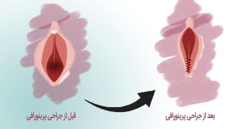 آیا عمل زیبایی پرینورافی واژن نیاز به بیهوشی دارد؟