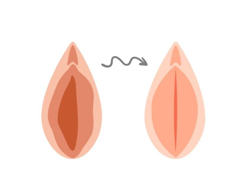 دلایل شل شدن و پهن شدن واژن